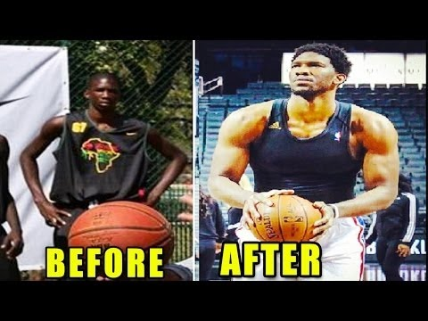 Embiid Before and After